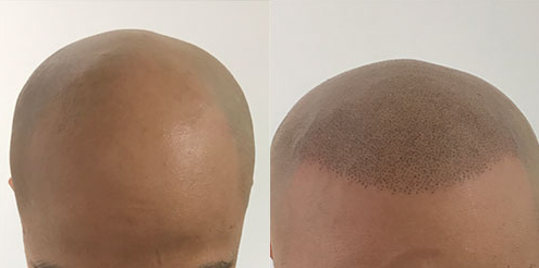 scalp micro pigmentation Zang SMP